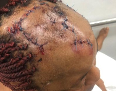Enugu Man Inflicts Injuries On His Sister Over Their Father's Property